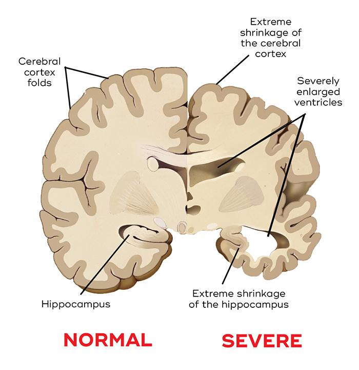 Normal brain vs. Alzheimer's brain
